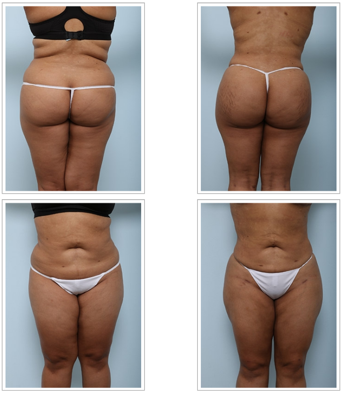 Four Key Things to Know Before Your Buttock Augmentation Consultation
