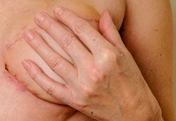 Options and resources for breast reconstruction after mastectomy