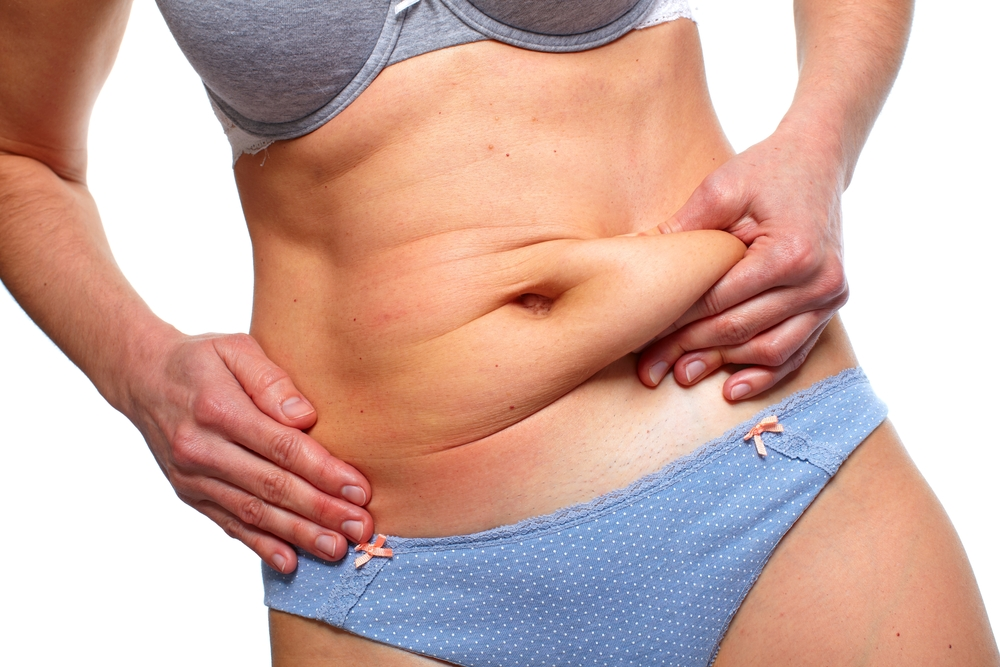 Different Tummy Tuck Techniques