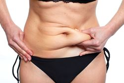 Which tummy tuck is right for me?