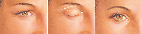 Eyelid surgery upper eyelid incision