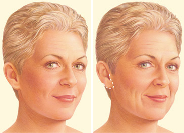 Facelift limited incision